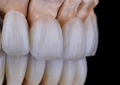 protesis-dentales-ok